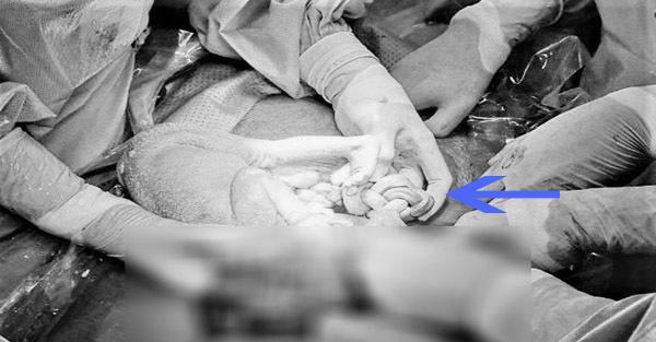 Hai bé song sinh chào đời có hai dây rốn vừa thắt nút vừa xoắn lò xo