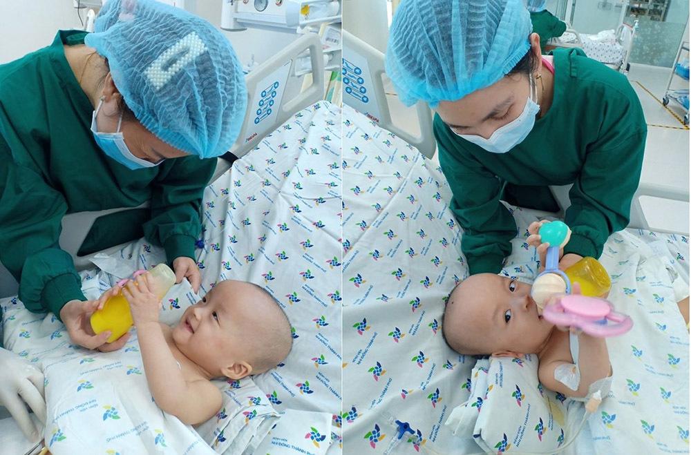 Sau 20 ngày mổ tách, hai bé song Nhi đã tự thở