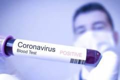 Tại sao nhiều bệnh nhân Covid-19 ít triệu chứng hơn so với người khác