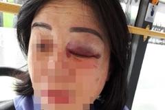 Nữ tiếp viên xe buýt ở Sài Gòn bị hành khách đánh sưng mắt