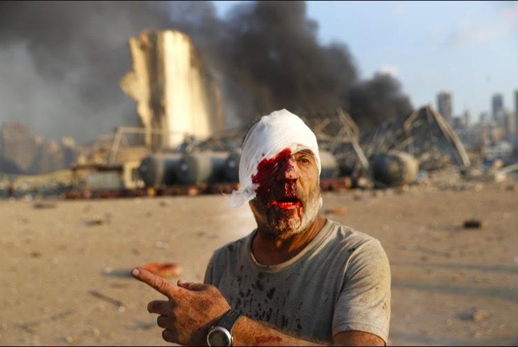 Nổ lớn ở thủ đô Lebanon, hàng nghìn người thương vong