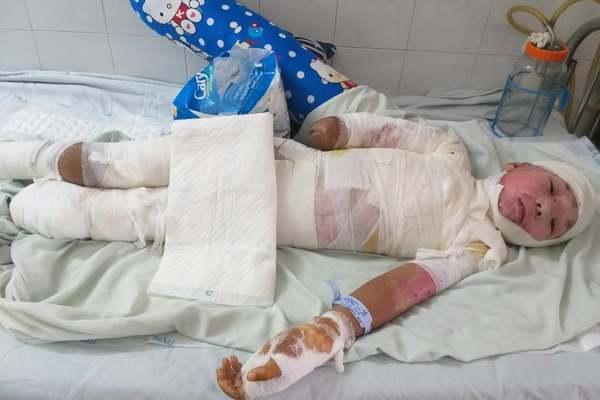 Bị bỏng điện nặng, cậu bé 12 tuổi buộc phải cắt bỏ tay chân