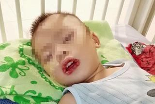 Bé 2 tuổi loét dạ dày nặng vì uống phải nước tẩy bồn cầu