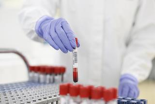Roche hỗ trợ Y tế Việt Nam nâng cao năng lực xét nghiệm Covid-19