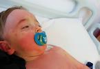 Căn bệnh lạ ở trẻ em liên quan tới virus nCoV