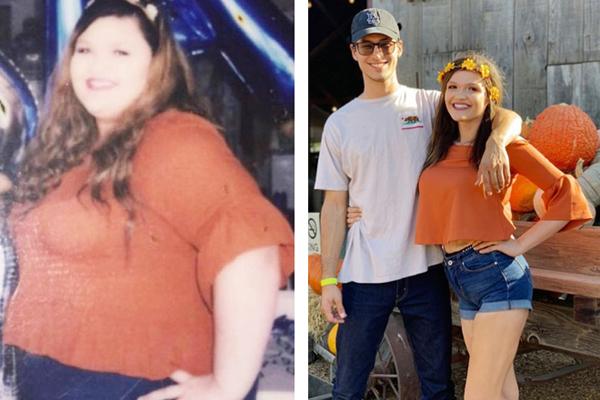 Cô gái 23 tuổi giảm 90 kg nhờ một ca mổ