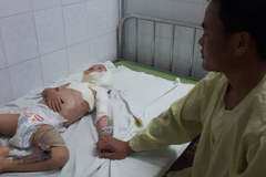 Bé trai 4 tuổi bị bỏng cồn nặng cần giúp đỡ khẩn cấp