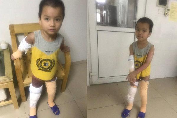 Bé Nguyễn Chính Mạnh đang tập đi, sức khỏe ổn định