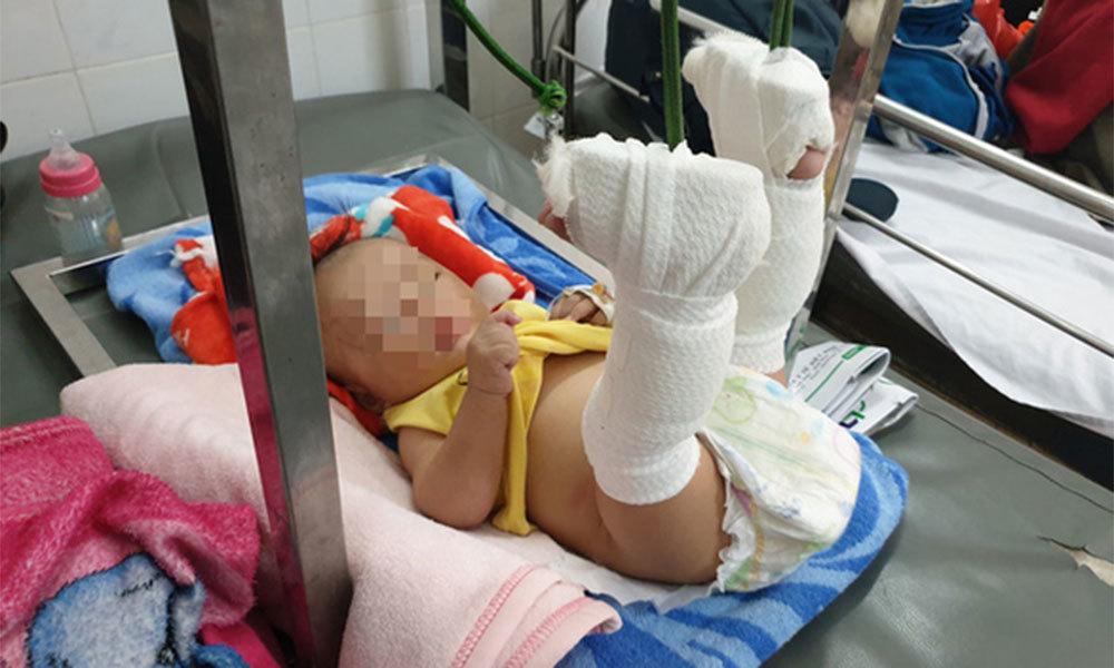 Bé trai 4 tháng tuổi bị cha đánh gãy chân vì không chịu ngủ