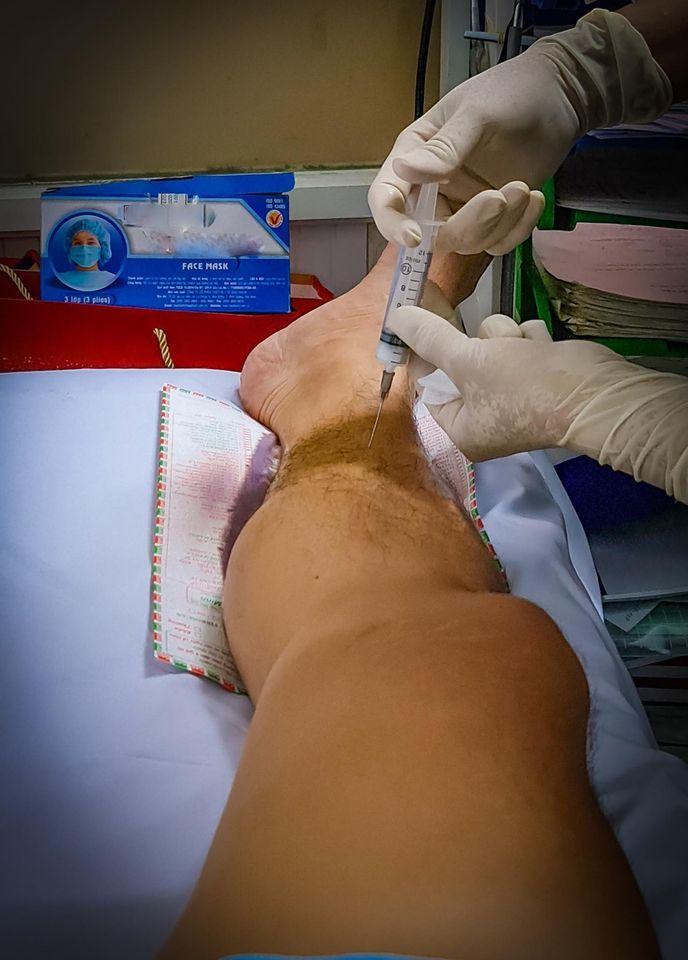 Ca sĩ Đức Tuấn bị viêm cơ bao xương ống quyển