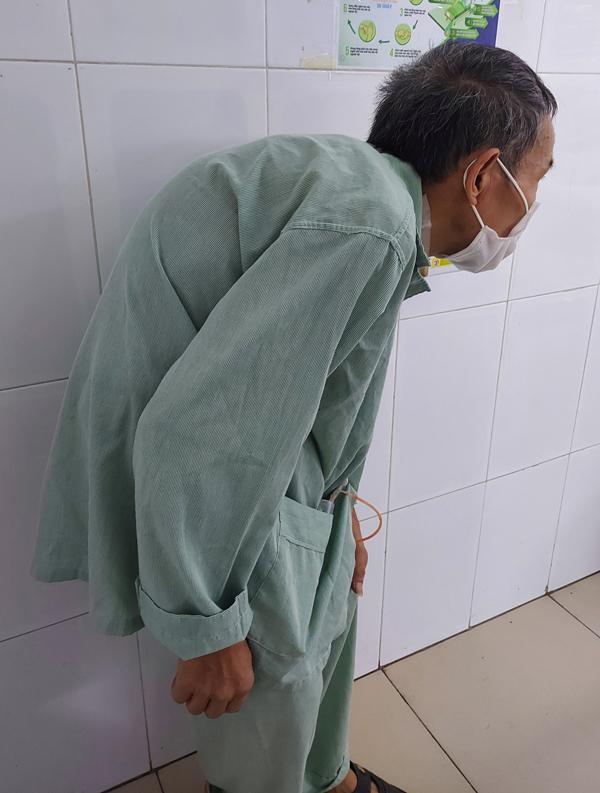 Bệnh nhân gù gập người do viêm cột sống 16 năm nay
