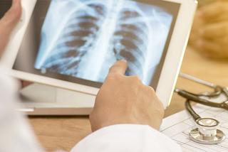 Lý do nhiều người bị ung thư phổi dù không tiếp xúc với khói thuốc