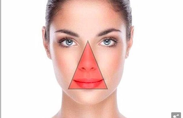 Nặn mụn trên mặt, thiếu nữ nhiễm trùng não nguy kịch