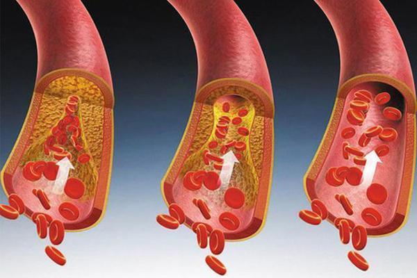 Ba bộ phận trên cơ thể càng 'mềm', bạn càng trường thọ