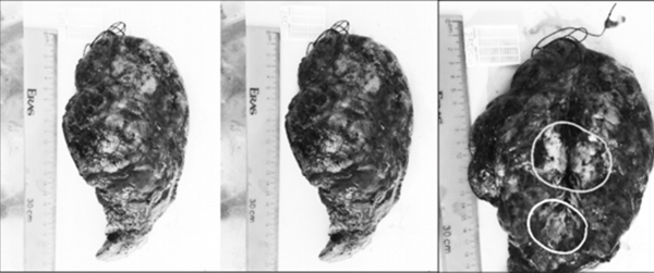 Patient found with twotypes of cancer in same lung