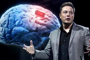 Tiết lộ cỗ máy cấy chip vào não người của Elon Musk