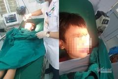 Quạt trần rơi khiến học sinh gãy xương mũi ở Lào Cai