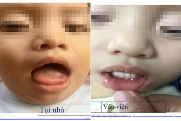 Bé 1 tuổi mắc tay chân miệng tổn thương não, 3 dấu hiệu sớm báo bệnh nặng