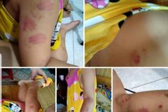Thái Bình phủ nhận thông tin trẻ mầm non bị cô giáo cắn