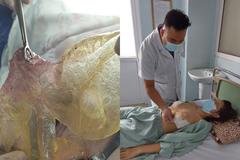 Người phụ nữ Hà Nội bị vỡ túi ngực sau 6 năm
