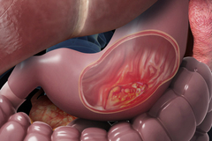 Tưởng đau dạ dày, người phụ nữ phát hiện ung thư di căn
