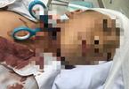 Bác sĩ chạy đua cứu bé trai bị kéo đâm xuyên cổ