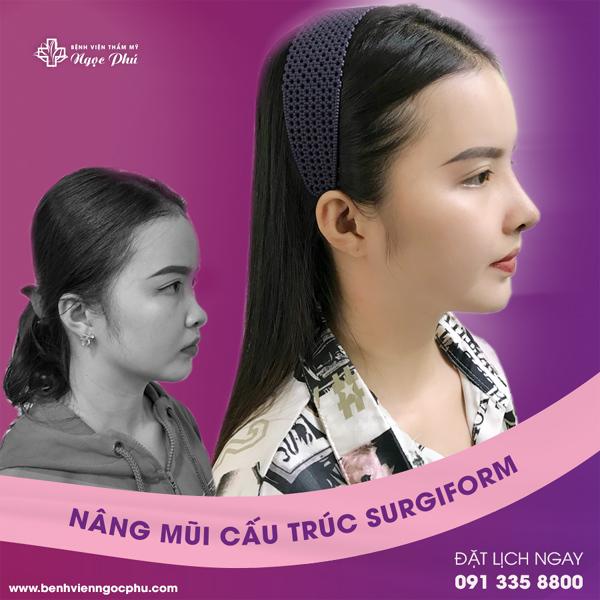 Nâng mũi bằng sụn sinh học surgiform ở BV Thẩm mỹ Ngọc Phú