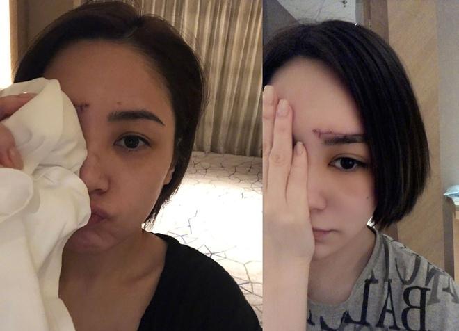 Ngã trong nhà vệ sinh, Chung Hân Đồng phải khâu hơn 60 mũi