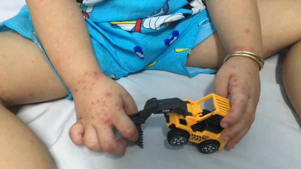 Hàng loạt trẻ bị tay chân miệng nhưng thuốc điều trị đã hết