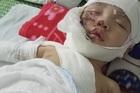 Đôi tay chới với của đứa trẻ 9 tháng tuổi bị bỏng nặng
