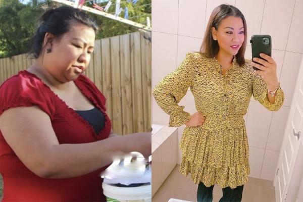Người phụ nữ nặng 130kg cắt dạ dày để giảm cân