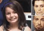 Bị chấy cắn suốt ba năm, bé gái 12 tuổi tử vong