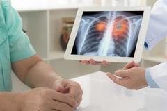 Các triệu chứng gây bất ngờ của ung thư phổi