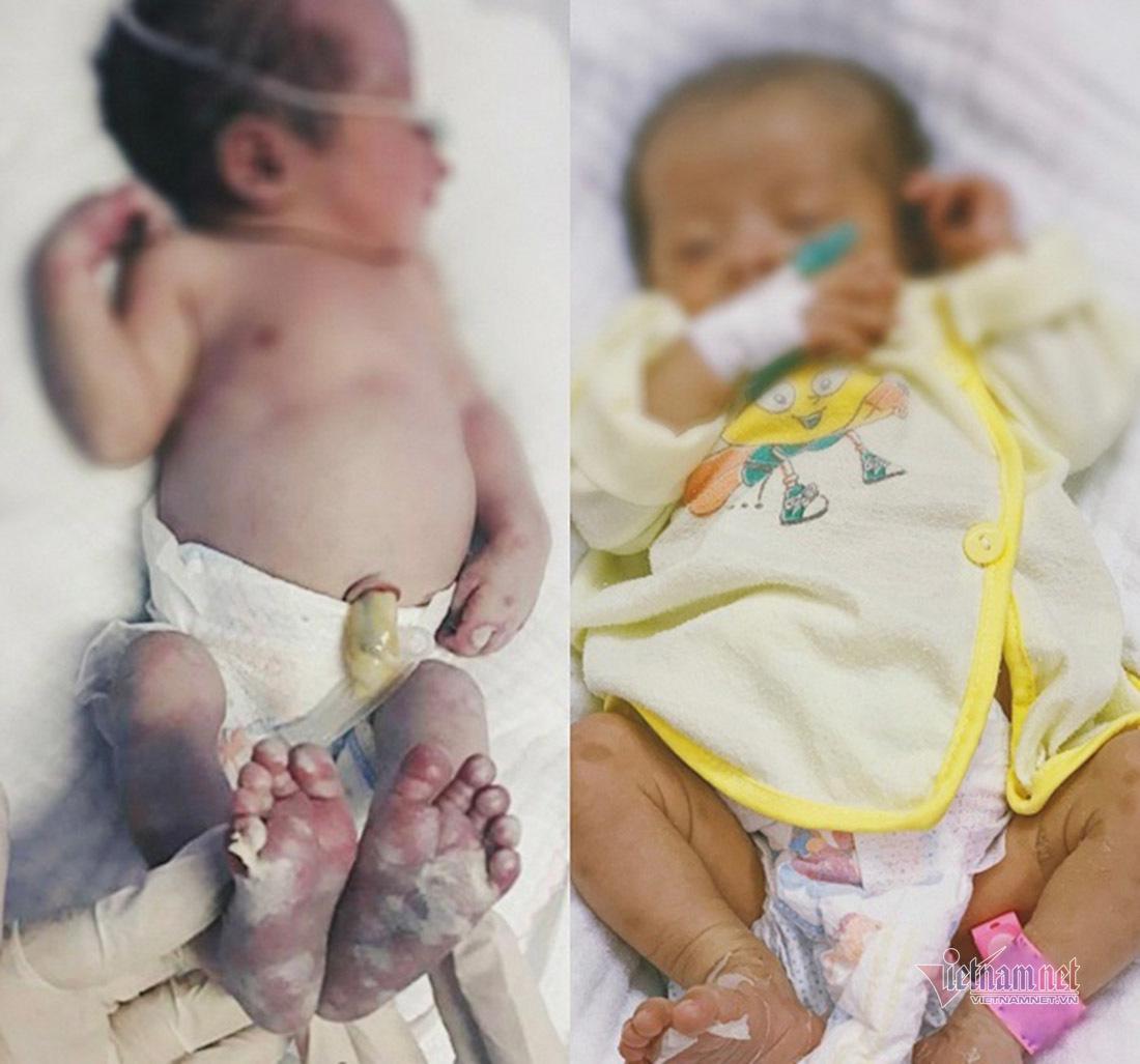 Bé gái mới chào đời mắc bệnh giang mai bẩm sinh
