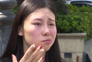 Cô gái xinh đẹp bị liệt nửa mặt sau tiêm filler xoá nhăn