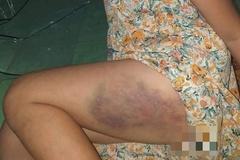 Tạm đình chỉ cô giáo đánh tím đùi học sinh lớp 3 ở Đắk Lắk