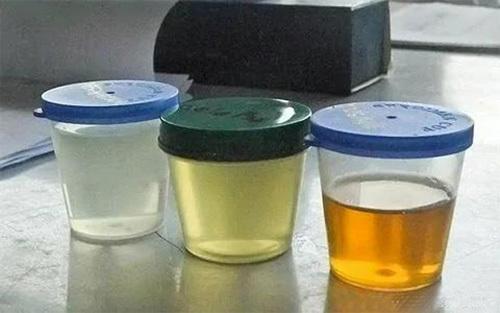 Các dấu hiệu bạn cần uống nước ngay để tránh mắc bệnh