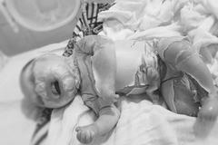 Bé trai vừa sinh ra đã đóng vảy như da cá vì bệnh cực hiếm