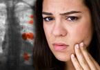 Dấu hiệu lộ trên mặt của ung thư phổi nhưng ít người biết