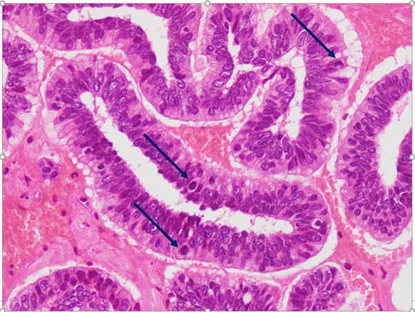 Cảnh giác mắc ung thư cổ tử cung từ triệu chứng không điển hình