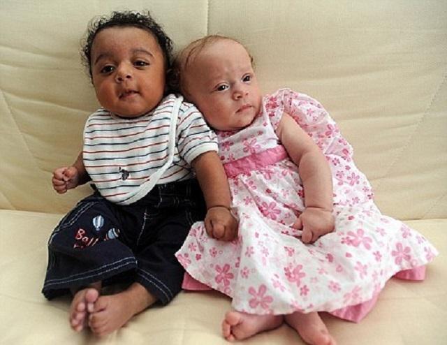 4 cặp sinh đôi hiếm gặp vì khác biệt về ngoại hình
