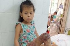 Trao hơn 94 triệu đồng đến bé Như Quỳnh bị dị dạng mạch máu