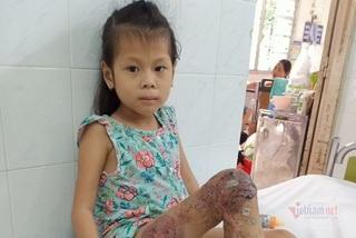 Bàn chân trụi lủi của bé gái 7 tuổi sau 18 lần phẫu thuật đau đớn