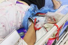 Người phụ nữ vác máy xay thịt đến bệnh viện cấp cứu