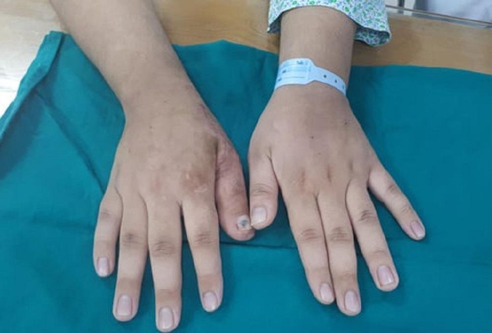 Chuyển ngón chân làm ngón tay cho chàng trai 17 tuổi