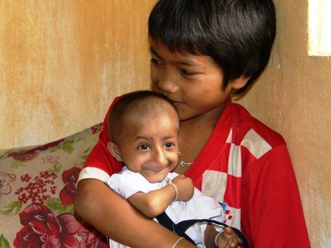 Cậu bé tí hon Đinh Văn K'Rể qua đời sau 4 ngày nằm viện