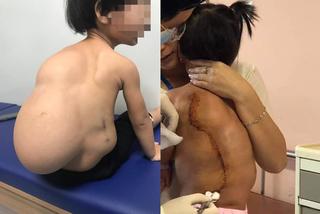 Bé gái 2 tuổi oằn mình cõng khối u lớn sau lưng, cột sống biến dạng