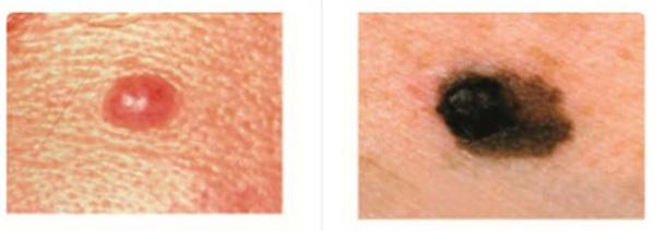 Dấu hiệu nhận biết nốt ruồi ung thư so với nốt ruồi thường