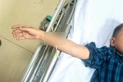 Bé trai 6 tuổi bị que xiên thịt nướng đâm xuyên cánh tay