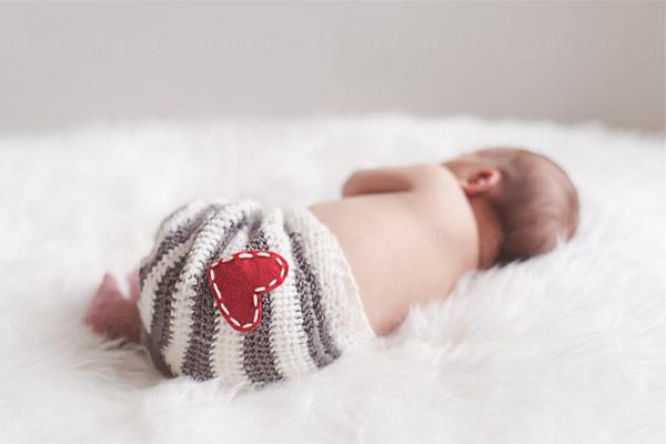 Cắt khối u 10 cm cho bé 3 ngày tuổi